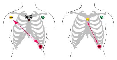 12 誘導 心電図 貼り 方
