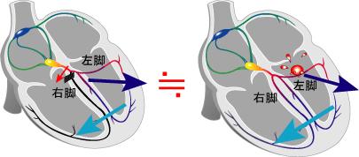 [図] 図: 右脚ブロックと左室起源の期外収縮(C)2004 Cardiac Nursing E